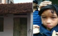 Cháu bé 10 tuổi bị nhốt ở chùa: Giám đốc CA tỉnh Hưng Yên lên tiếng