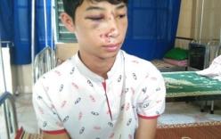 Nam sinh lớp 10 bị công an xã đánh nhập viện vì nhầm là trộm