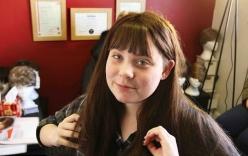 Cô gái 15 tuổi suýt tử vong do dùng thuốc trị mụn quá liều