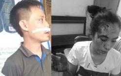 Hà Nội: Hỗn chiến trong quán lẩu, 1 cụ ông tử vong
