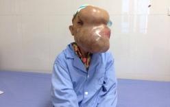 Cụ bà bị vỡ mắt do mang khối u khổng lồ che kín mặt