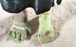 Ảnh bé gái chân đi găng tay, chân đi tất rách gây xúc động