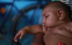 Virus Zika gây teo não không đáng sợ như bạn tưởng