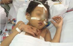 Giành giật sự sống cho bé gái dập não do tai nạn