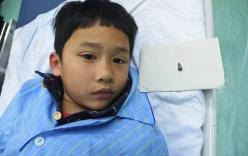 Đầu bút bi mắc trong phế quản bệnh nhi 7 tuổi