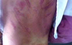Bé gái 8 tuổi bị mẹ kế đánh đập dã man vì...1.000 đồng