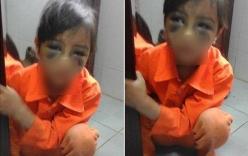 Tường trình của cô giáo đánh nữ sinh lớp 1 thâm tím mắt