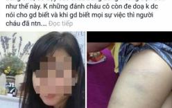 Bắc Ninh: Nghi vấn cô giáo chủ nhiệm đánh học sinh bầm tím người
