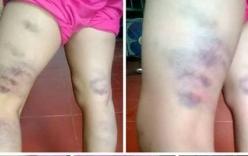 Viết sai một chữ, học sinh bị cô giáo đánh tím chân