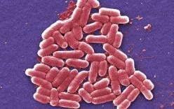Phát hiện siêu vi khuẩn có thể kháng tất cả các loại kháng sinh