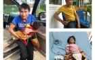 Bé 14 tháng tuổi nặng 3,5kg: Nhóm từ thiện