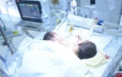 Cặp song sinh dính liền ở Hà Giang tử vong