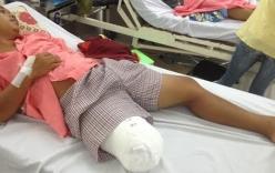 Vụ bệnh nhân bị cưa chân ở TP HCM: Bộ Y tế vào cuộc