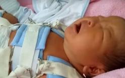 Bộ Y tế yêu cầu kỷ luật bác sĩ làm gãy chân trẻ sơ sinh