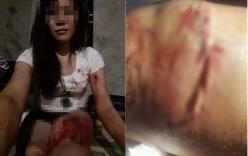 Bị chồng bạo hành dã man, người vợ tự lấy kim khâu vết thương