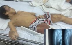 Bố mẹ đánh con trai 5 tuổi gãy chân