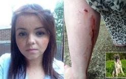 Chủ đứng yên nhìn chó tấn công cô gái trẻ gây phẫn nộ
