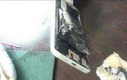 Thêm 1 trường hợp điện thoại bốc cháy khiến người dùng bỏng nặng