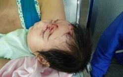 Bé gái 2 tháng tuổi suýt bị khỉ