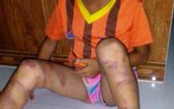 Bé gái 8 tuổi bị bố đẻ đánh đập dã man