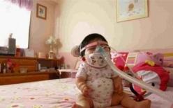 Nghị lực phi thường của cô gái 17 tuổi trong thân hình trẻ sơ sinh