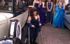 Cô gái chấp nhận đau đớn để kéo chân dài thêm 18cm