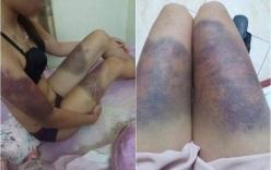 Tiết lộ sốc vụ cô gái bị bạn trai hành hung như thời trung cổ ở Hà Nội