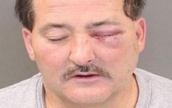 Điên tiết vì bị ăn mất sandwich, chồng lôi súng ra bắn vợ