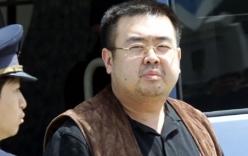 Không phát hiện dấu hiệu Kim Jong-nam bị đau tim