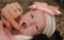 Ly kỳ câu chuyện bé sơ sinh mọc răng khi còn trong bụng mẹ