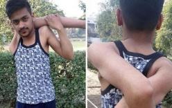 Video: Hy hữu chàng trai có cánh tay dẻo như bún