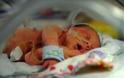 Mẹ quyết định sinh con chỉ có nửa quả tim và cái kết trọn vẹn