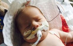 Hy hữu bé sơ sinh ngừng thở 22 phút bất ngờ sống lại