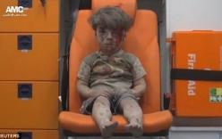 Cậu bé Syria mình đầy thương tích và bê bết máu sau một năm giờ thế nào?
