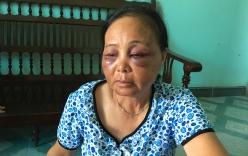 Người phụ nữ bị đánh vì nghi bắt cóc trẻ em: