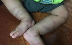 Vụ bé trai 14 tháng bị bạo hành dã man, bỏ lại bệnh viện: Lộ diện người liên quan