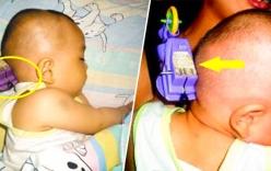 Nguời mẹ nhanh trí cứu con nhỏ bị đồ chơi cắm vào đầu thoát chết