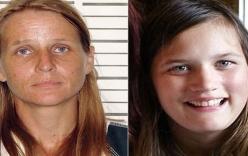 Mẹ ruột nhẫn tâm thiêu chết con gái 16 tuổi vì con bị tự kỷ