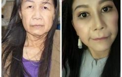 Cô gái 22 tuổi bị lão hóa như cụ bà 80 lột xác nhờ phẫu thuật thẩm mỹ
