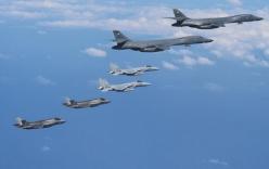 Vì sao dân Mỹ phản đối tấn công phủ đầu Triều Tiên?