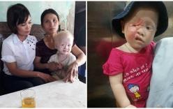 Xót xa cuộc đời bé gái 2 tuổi bạch tạng bị hỏng một mắt, sẹo bỏng chằng chịt khuôn mặt