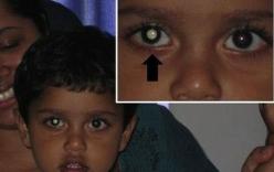 Bố mẹ phát hiện con mắc bệnh nguy hiểm khi chụp ảnh cho con