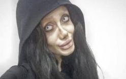 Cô gái Iran phẫu thuật hơn 50 lần để giống Angelina Jolie nhưng lại hóa \