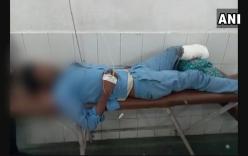 Hãi hùng cảnh lấy chân bị cắt bỏ của bệnh nhân làm gối đầu