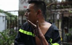 Bàn tay trôi tuột da của anh lính cứu hỏa trong vụ cháy chung cư Carina