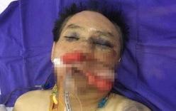 Nguyên đại tá công an và con trai đánh vợ chồng anh trai dập phổi