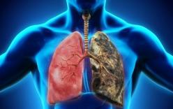 Ung thư phổi gây tử vong số 1: Những dấu hiệu cảnh báo sớm tuyệt đối không nên \