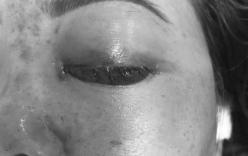 Tiêm filler nâng mũi: Thêm một nạn nhân ở Sài Gòn mù mắt