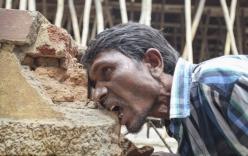 Hãi hùng dị nhân ăn 3kg bùn đất mỗi ngày, nhai gạch rau ráu