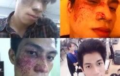 Không xin được việc vì vết chàm lớn trên gương mặt, thanh niên quyết tâm